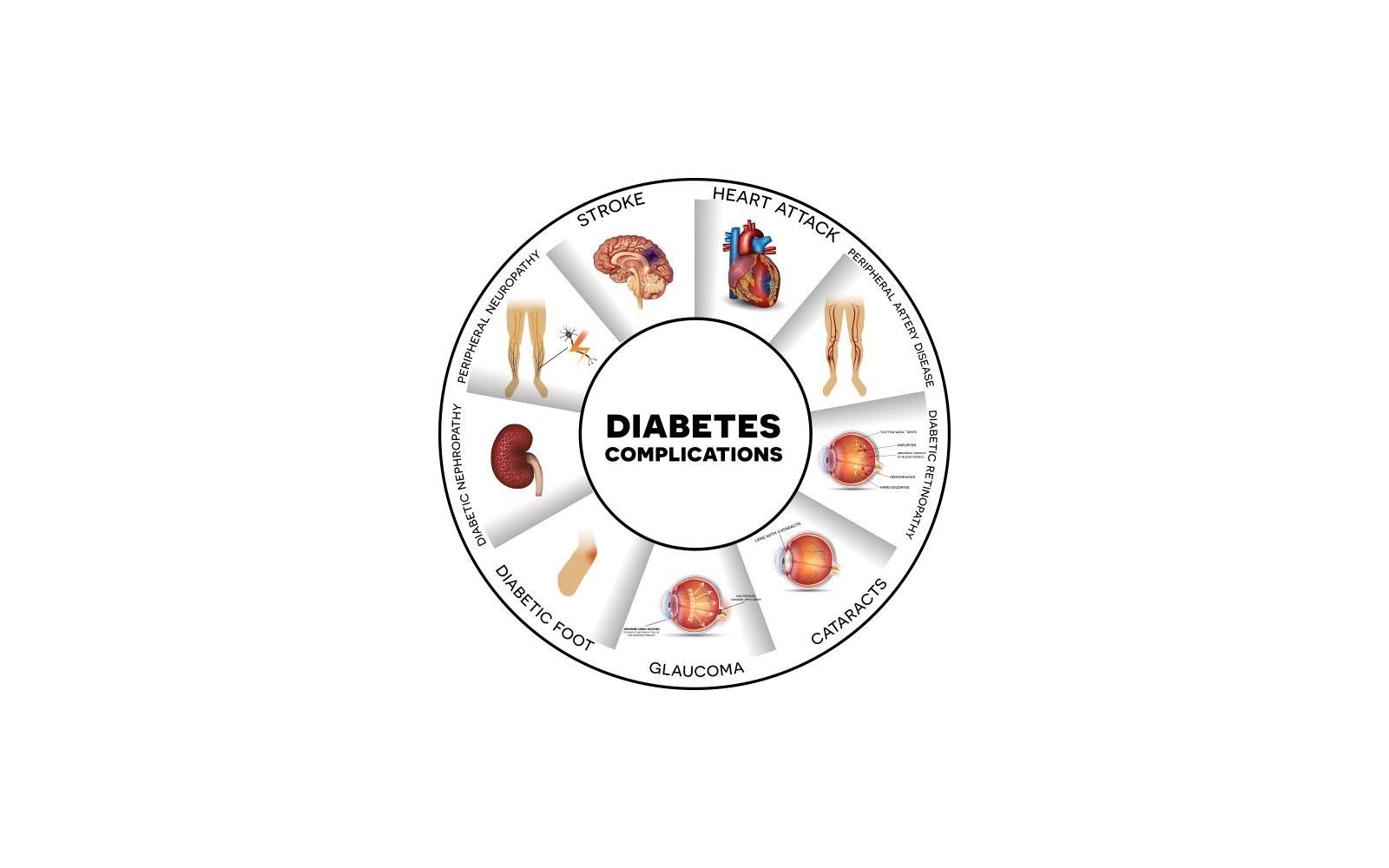 Bagaimana Diabetes Bisa Memicu Stroke?